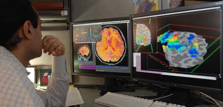photo of a researcher looking at MRI scans